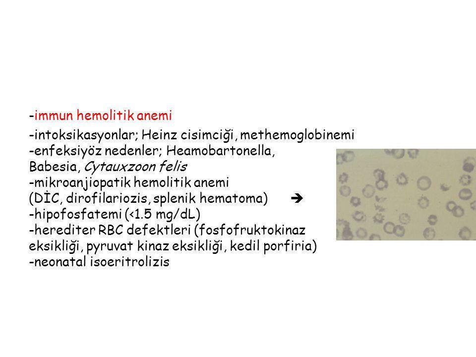 -immun hemolitik anemi