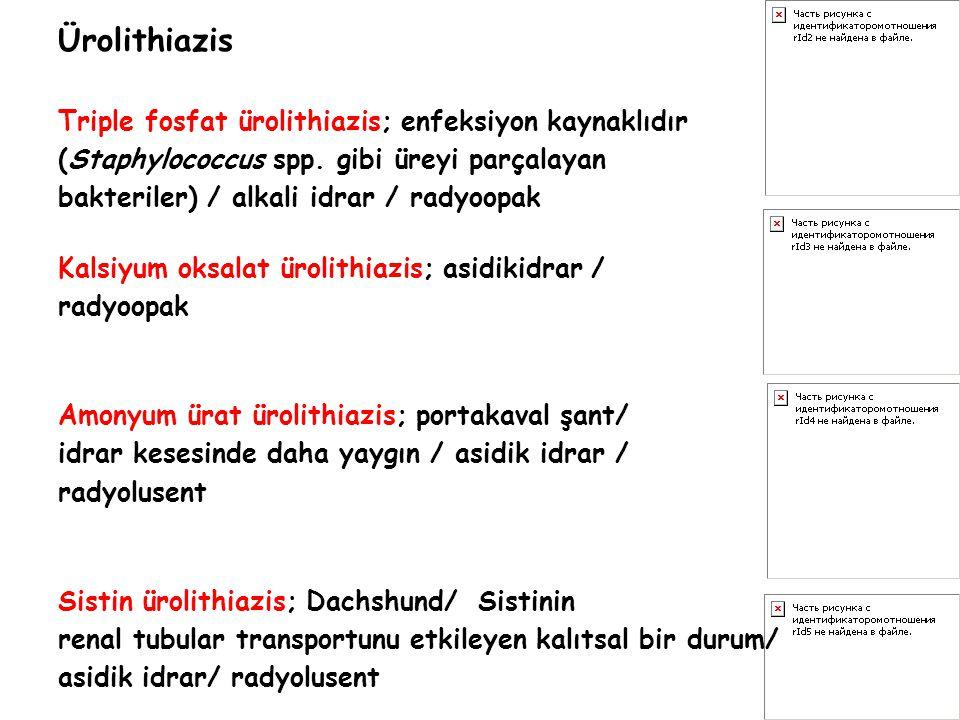Ürolithiazis Triple fosfat ürolithiazis; enfeksiyon kaynaklıdır