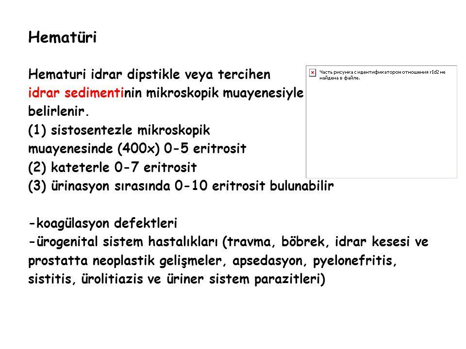 Hematüri Hematuri idrar dipstikle veya tercihen