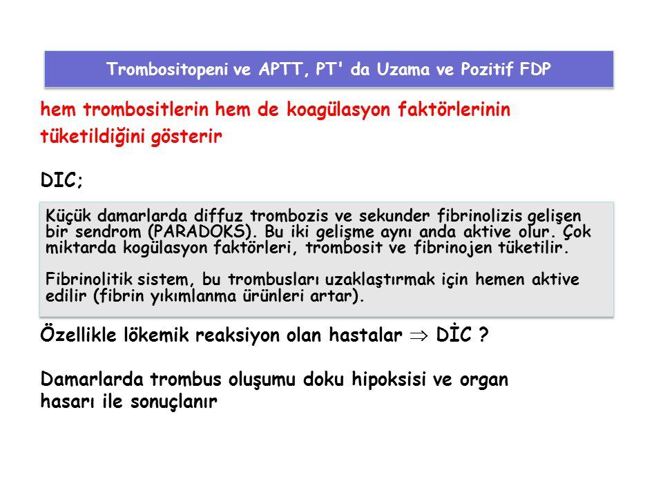 Trombositopeni ve APTT, PT da Uzama ve Pozitif FDP