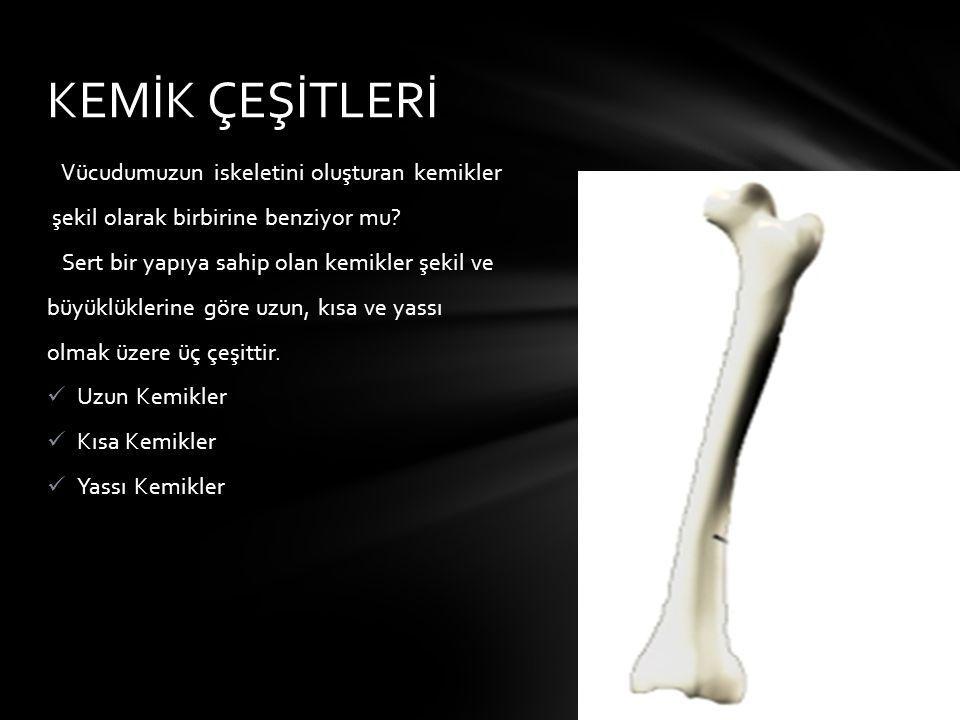 KEMİK ÇEŞİTLERİ Vücudumuzun iskeletini oluşturan kemikler