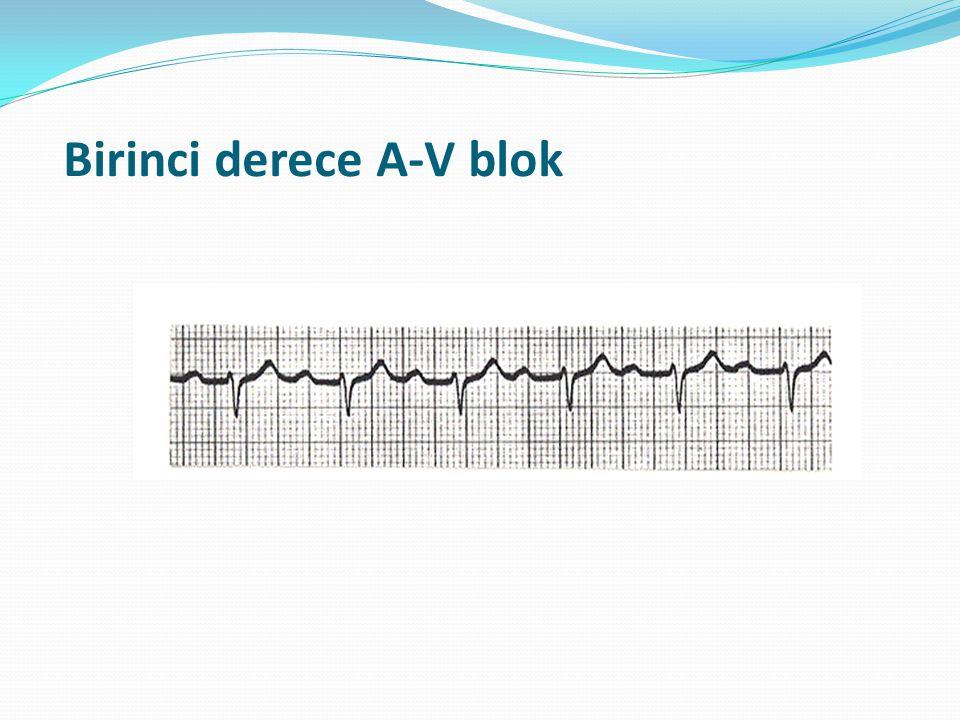 Birinci derece A-V blok