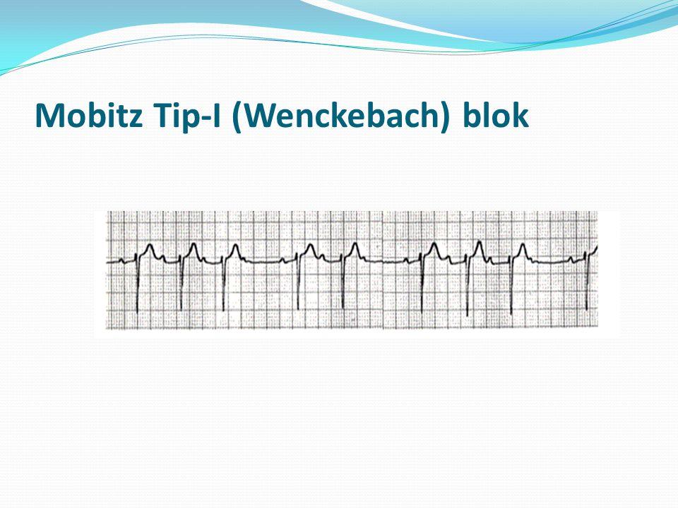 Mobitz Tip-I (Wenckebach) blok