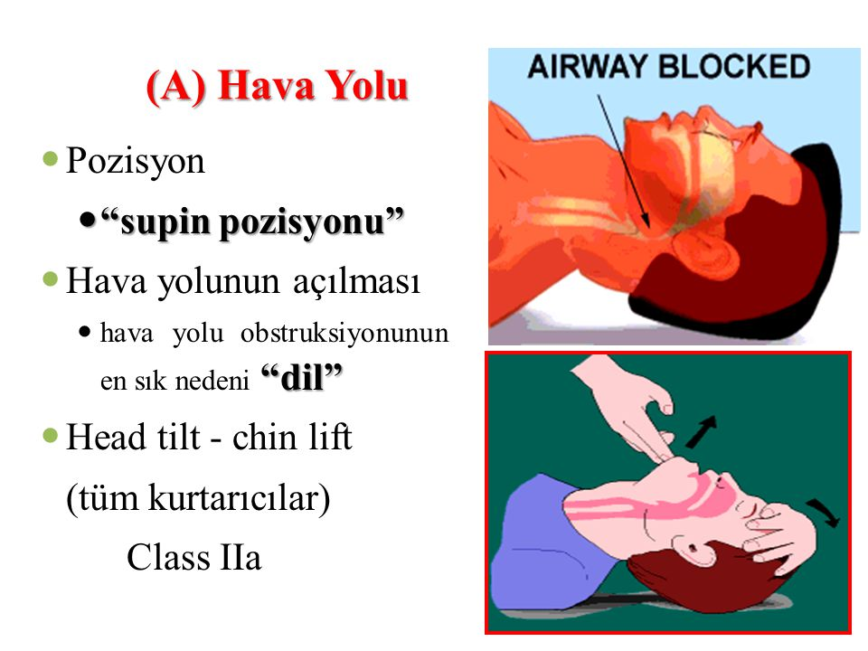 (A) Hava Yolu Pozisyon supin pozisyonu Hava yolunun açılması
