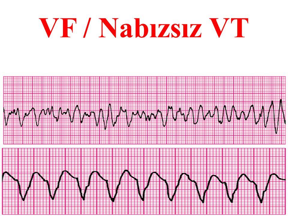 VF / Nabızsız VT