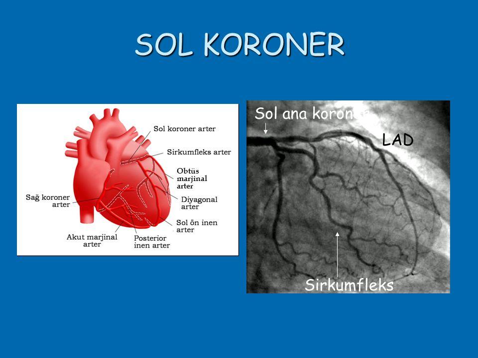 SOL KORONER Sol ana koroner LAD Sirkumfleks Obtüs marjinal arter