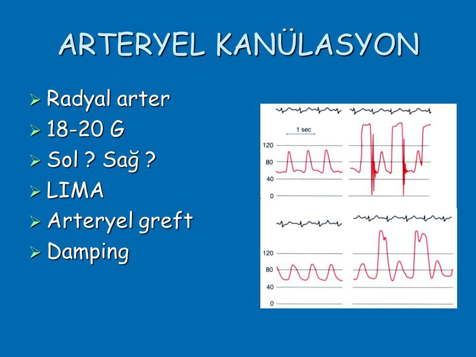 ARTERYEL KANÜLASYON Radyal arter 18-20 G Sol Sağ LIMA