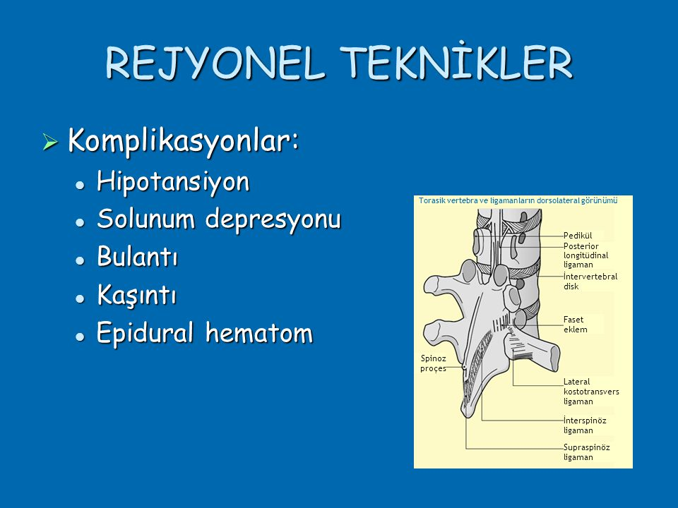 REJYONEL TEKNİKLER Komplikasyonlar: Hipotansiyon Solunum depresyonu