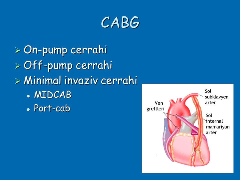 CABG On-pump cerrahi Off-pump cerrahi Minimal invaziv cerrahi MIDCAB