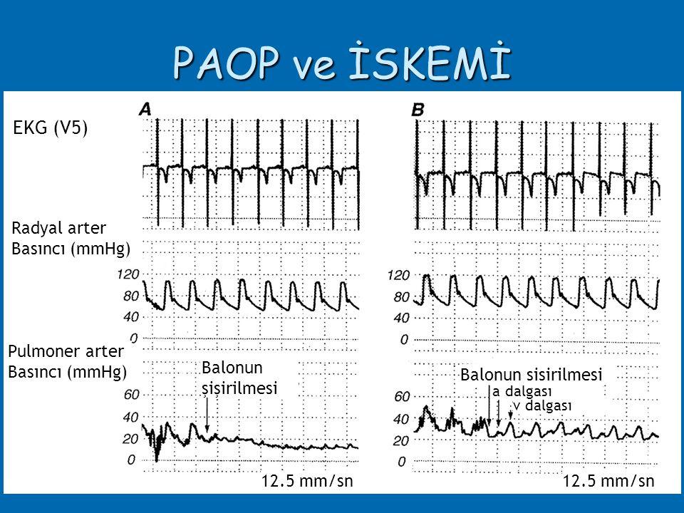PAOP ve İSKEMİ EKG (V5) Radyal arter Basıncı (mmHg) Pulmoner arter