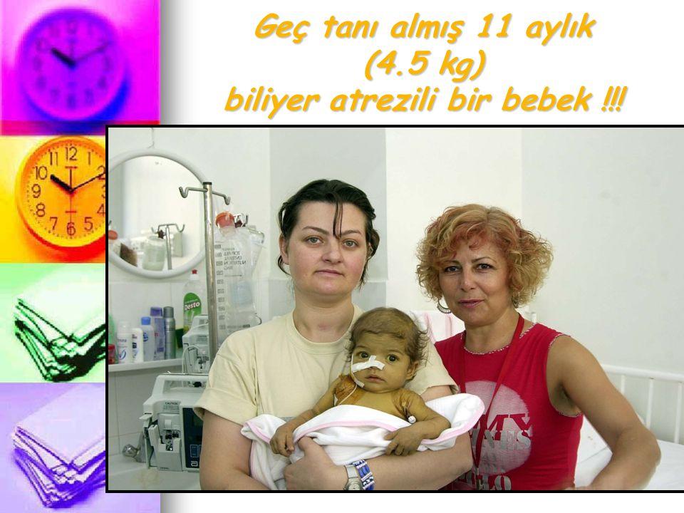 Geç tanı almış 11 aylık (4.5 kg) biliyer atrezili bir bebek !!!