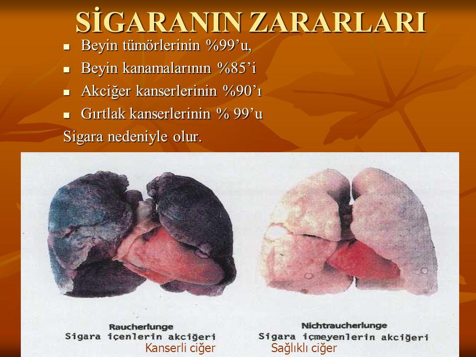 SİGARANIN ZARARLARI Beyin tümörlerinin %99'u,