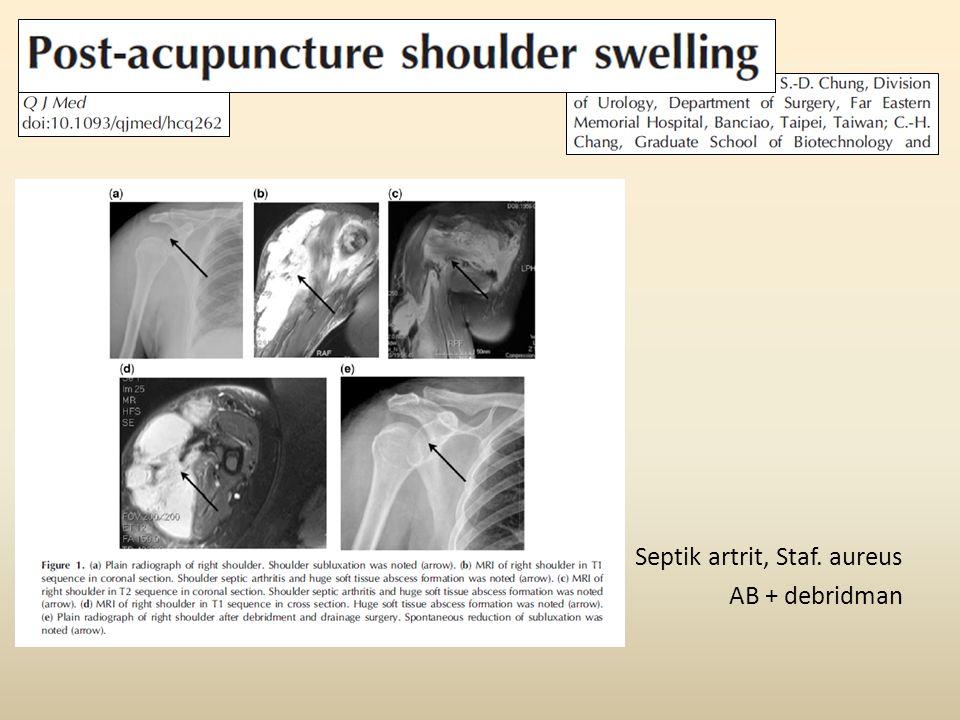 Septik artrit, Staf. aureus