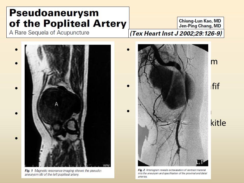 61 yaş, K Uylukta ağrı, ekimoz, şişlik. 4 aydır sol uylukta, büyüyen pulsatil kitle. Uyluktan ayağa yayılan keskin ağrı.