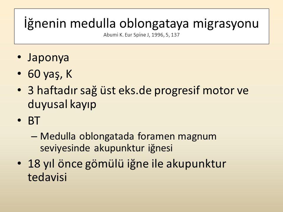 İğnenin medulla oblongataya migrasyonu Abumi K