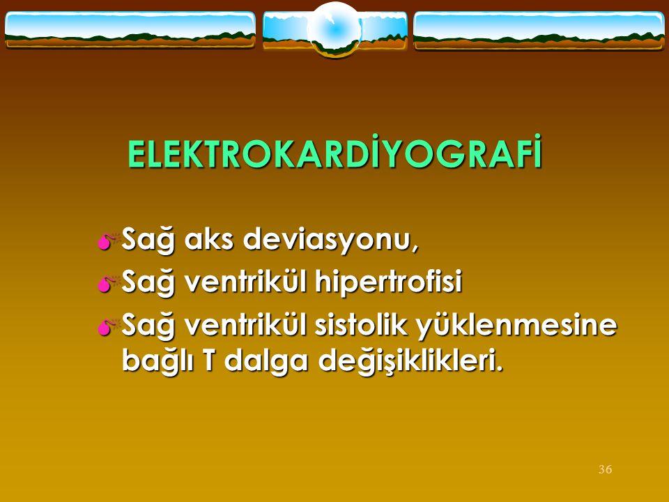 ELEKTROKARDİYOGRAFİ Sağ aks deviasyonu, Sağ ventrikül hipertrofisi