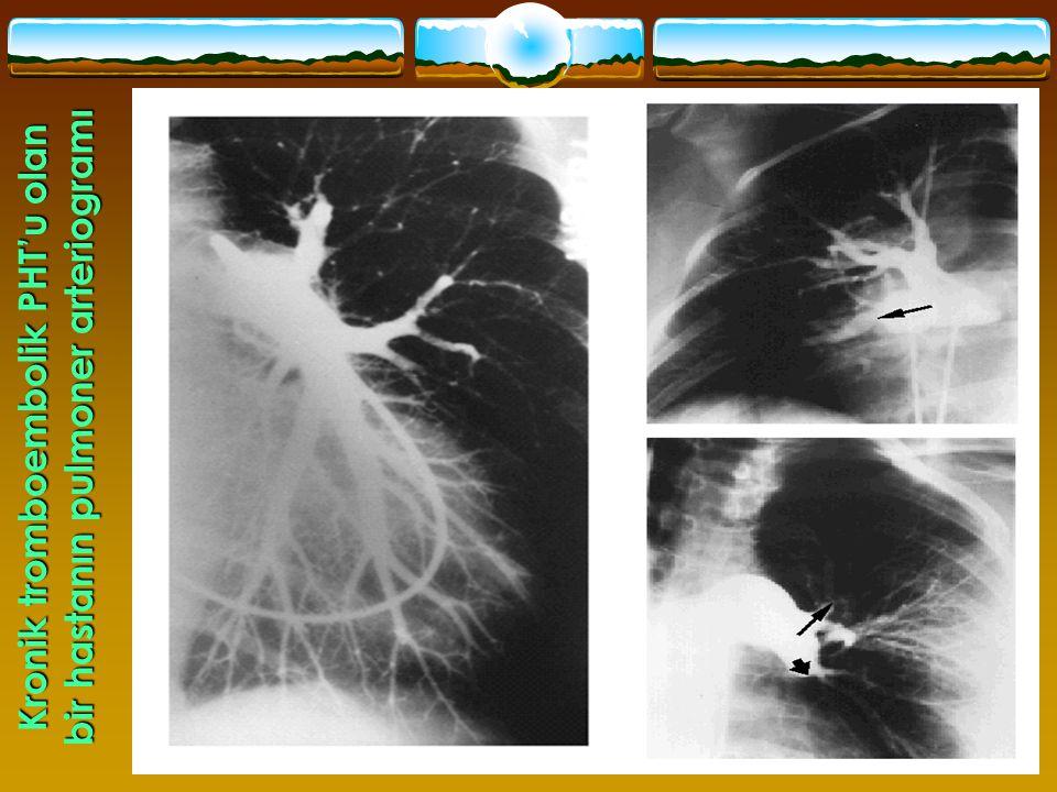 Kronik tromboembolik PHT'u olan bir hastanın pulmoner arteriogramı