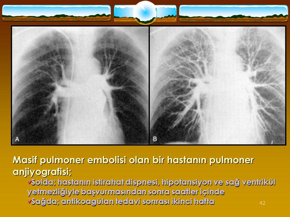 Masif pulmoner embolisi olan bir hastanın pulmoner anjiyografisi;