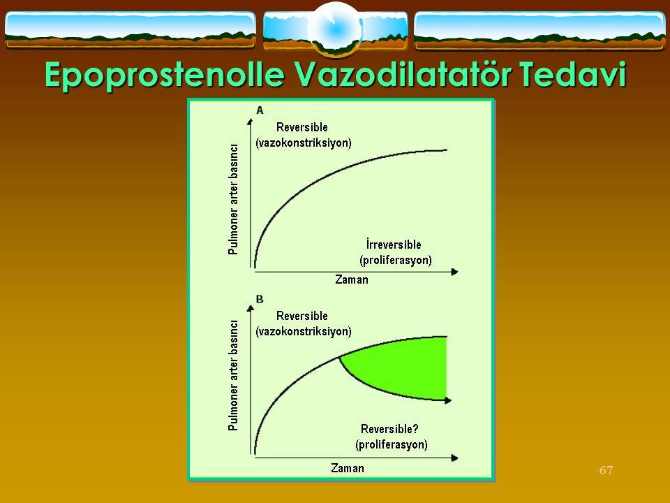 Epoprostenolle Vazodilatatör Tedavi