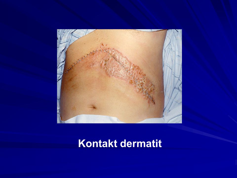 Kontakt dermatit