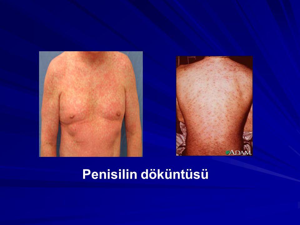 Penisilin döküntüsü