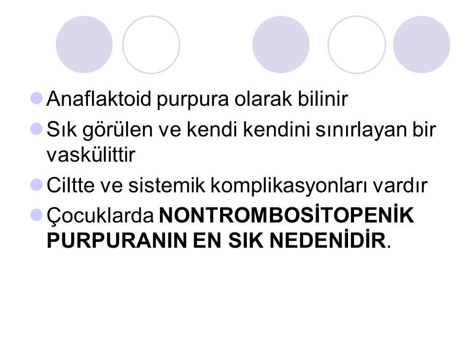 Anaflaktoid purpura olarak bilinir