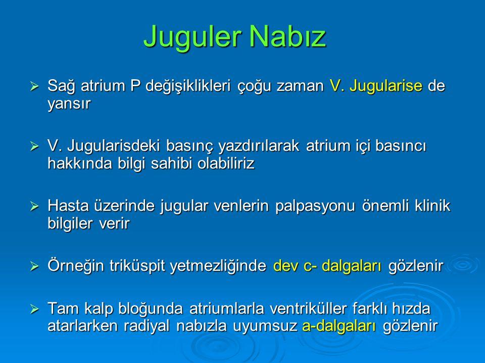 Juguler Nabız Sağ atrium P değişiklikleri çoğu zaman V. Jugularise de yansır.