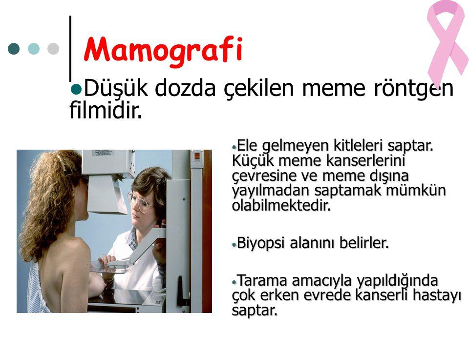 Mamografi Düşük dozda çekilen meme röntgen filmidir.