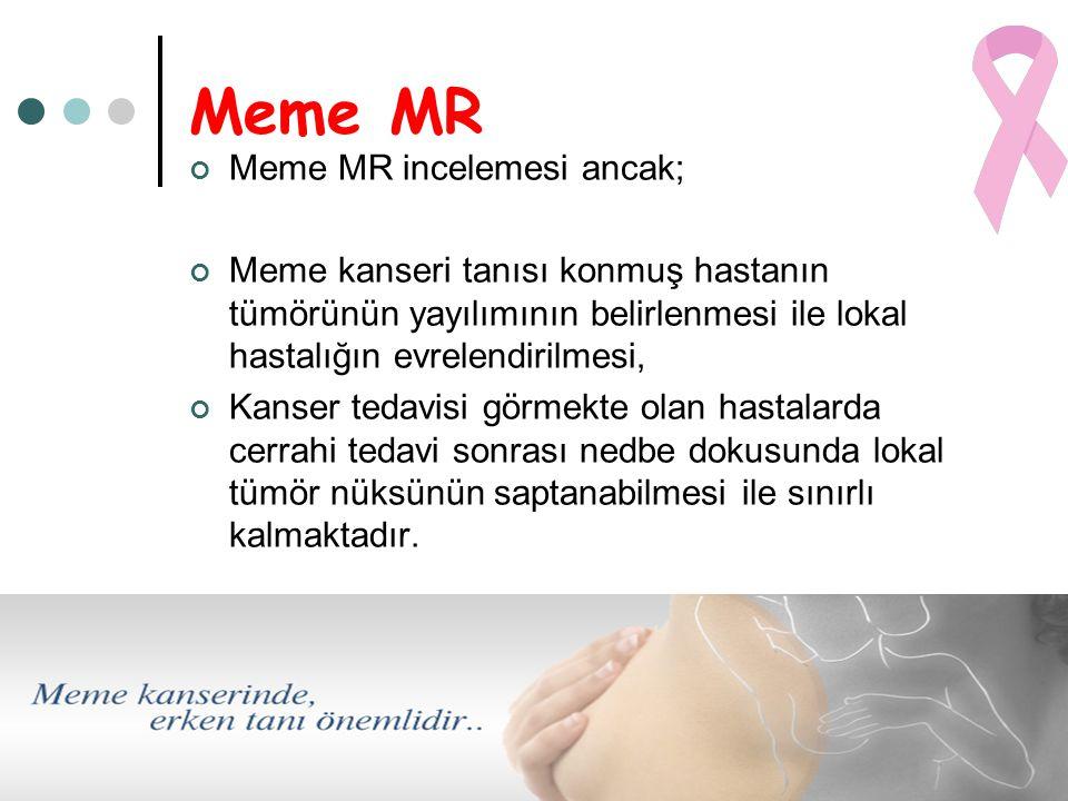 Meme MR Meme MR incelemesi ancak;