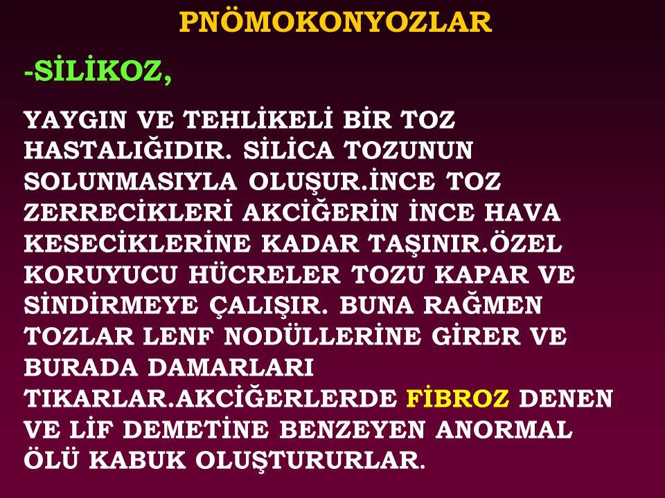PNÖMOKONYOZLAR -SİLİKOZ,