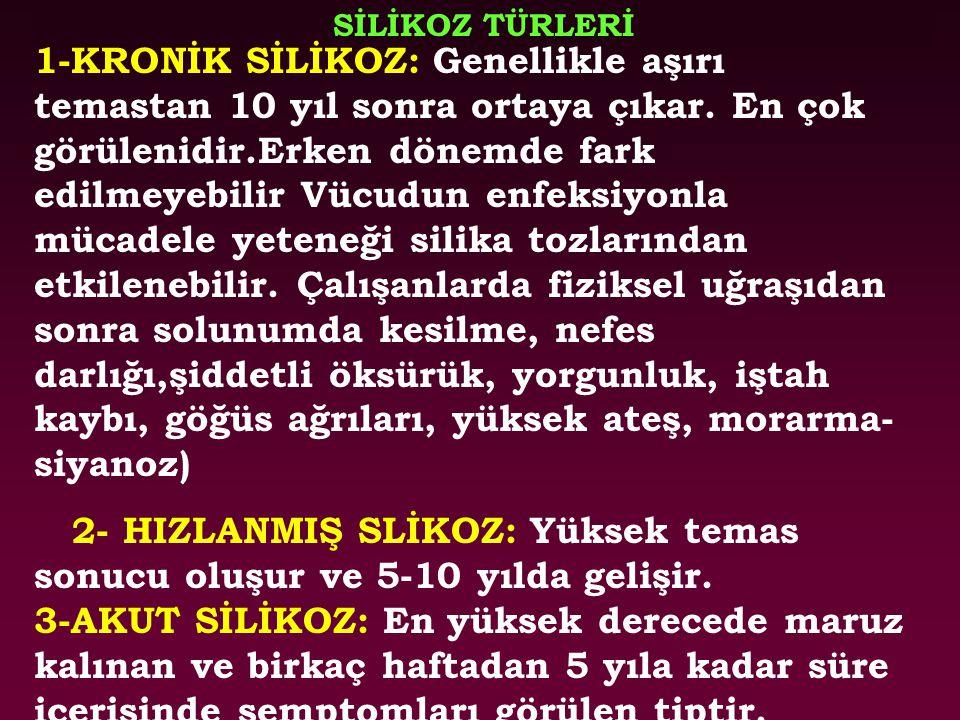 SİLİKOZ TÜRLERİ