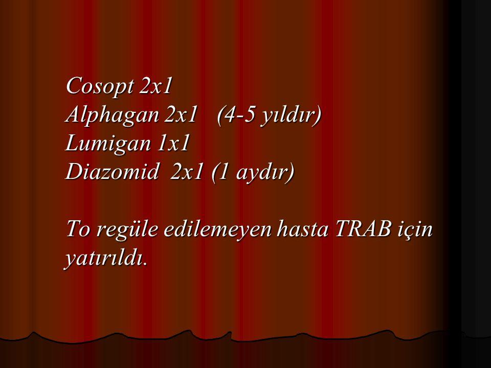Cosopt 2x1 Alphagan 2x1 (4-5 yıldır) Lumigan 1x1 Diazomid 2x1 (1 aydır) To regüle edilemeyen hasta TRAB için yatırıldı.