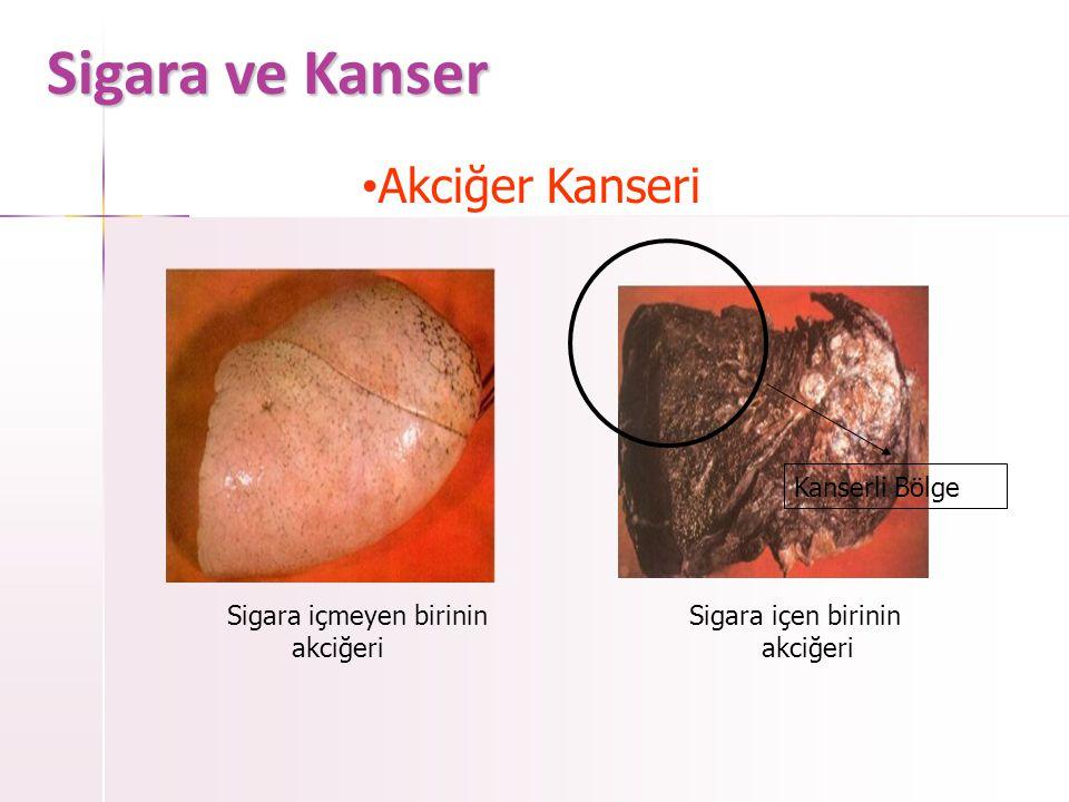 Sigara ve Kanser Akciğer Kanseri Kanserli Bölge