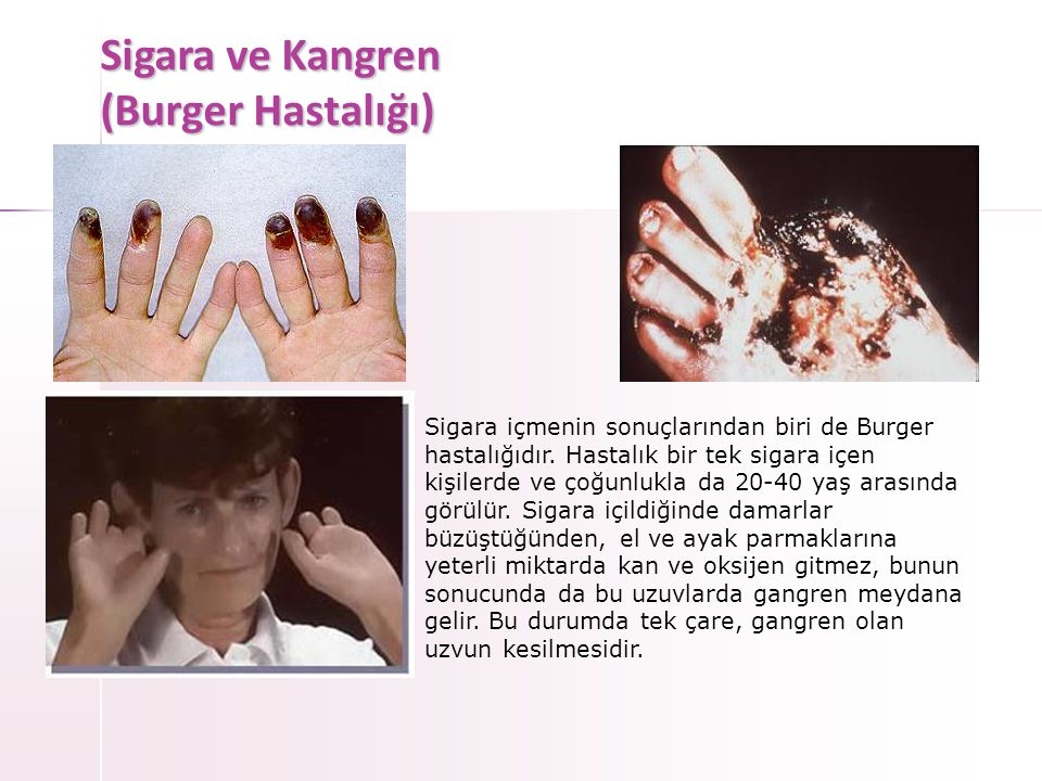 Sigara ve Kangren (Burger Hastalığı)