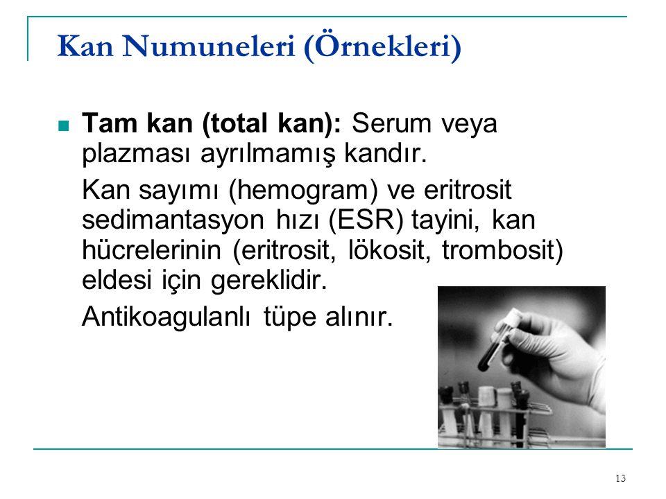 Kan Numuneleri (Örnekleri)