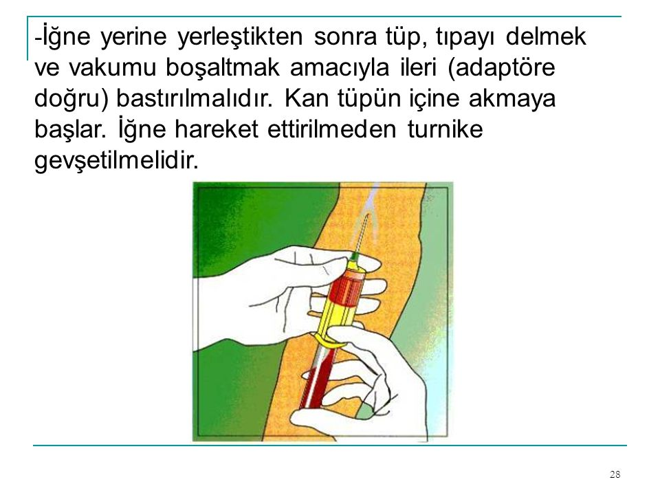 -İğne yerine yerleştikten sonra tüp, tıpayı delmek ve vakumu boşaltmak amacıyla ileri (adaptöre doğru) bastırılmalıdır.