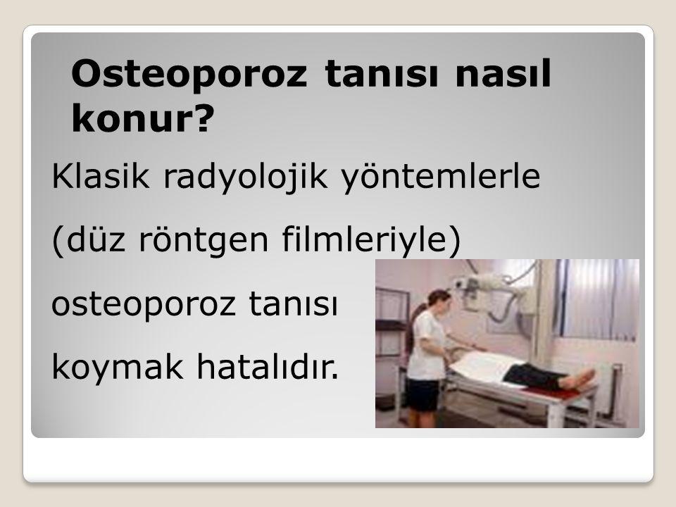 Osteoporoz tanısı nasıl konur