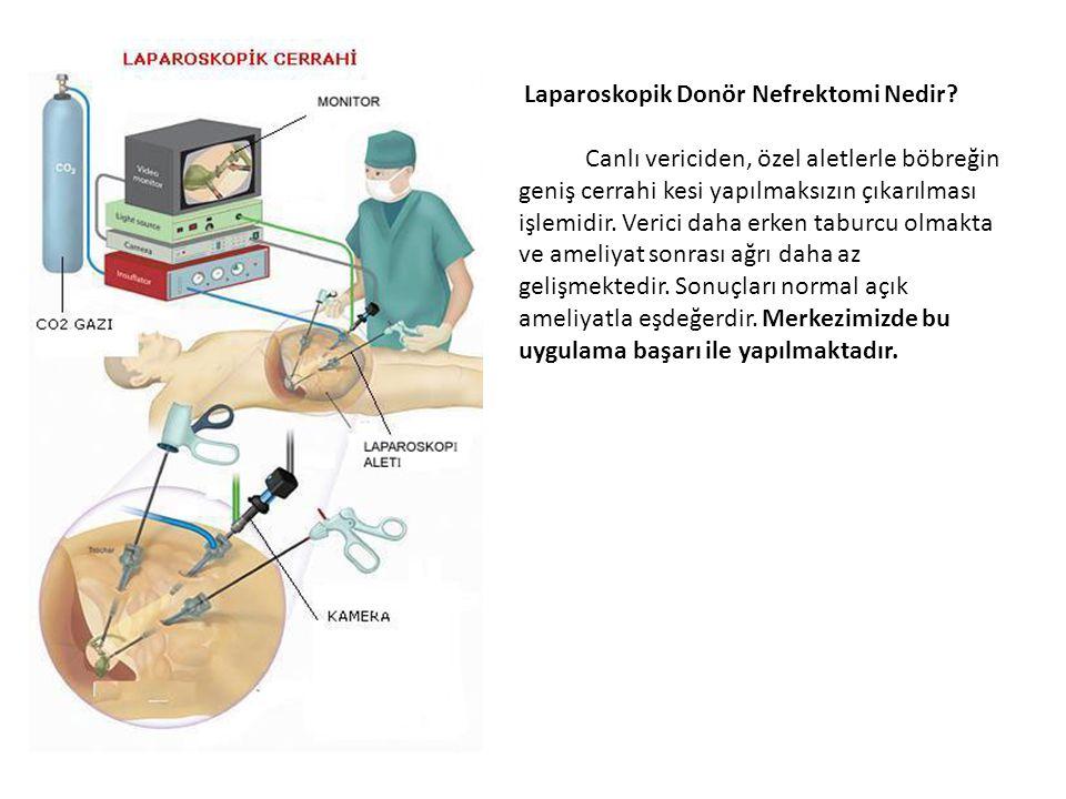 Laparoskopik Donör Nefrektomi Nedir