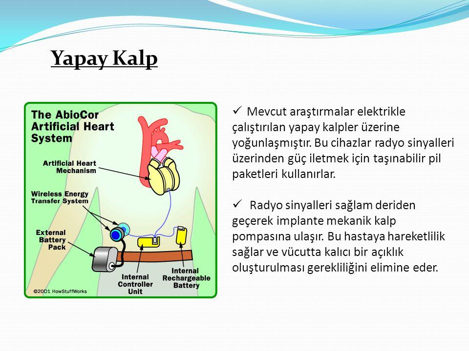 Yapay Kalp Mevcut araştırmalar elektrikle
