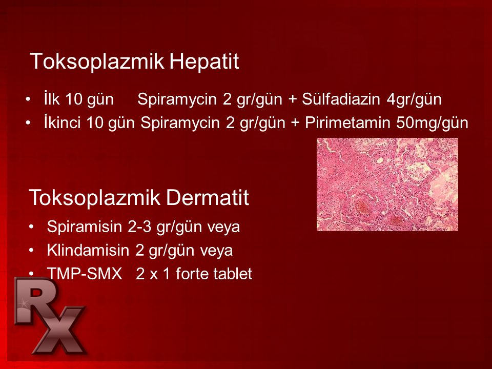 Toksoplazmik Dermatit