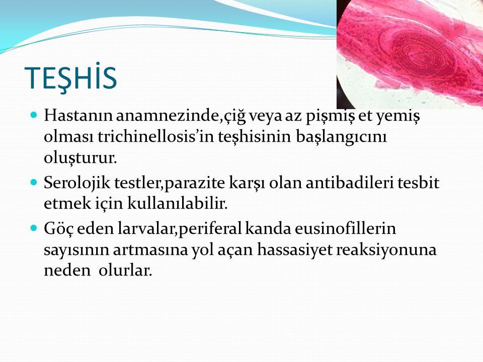 TEŞHİS Hastanın anamnezinde,çiğ veya az pişmiş et yemiş olması trichinellosis'in teşhisinin başlangıcını oluşturur.