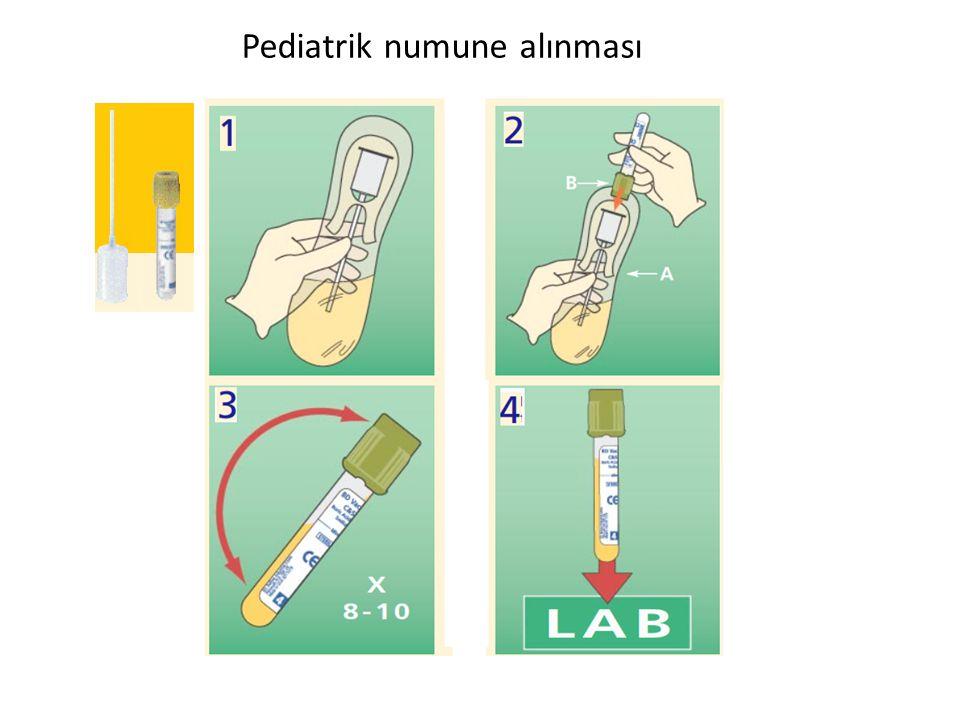 Pediatrik numune alınması