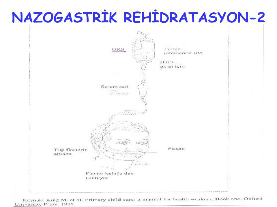 NAZOGASTRİK REHİDRATASYON-2