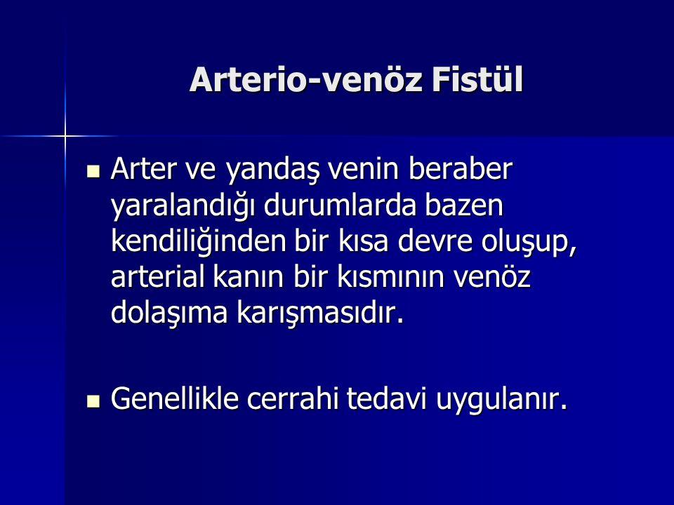 Arterio-venöz Fistül