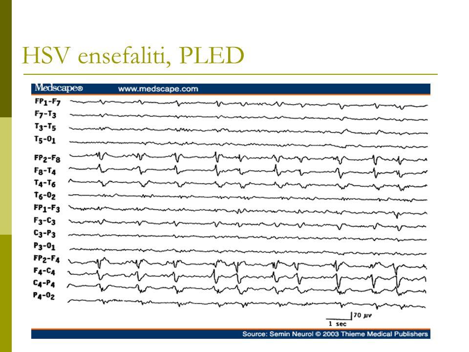 HSV ensefaliti, PLED
