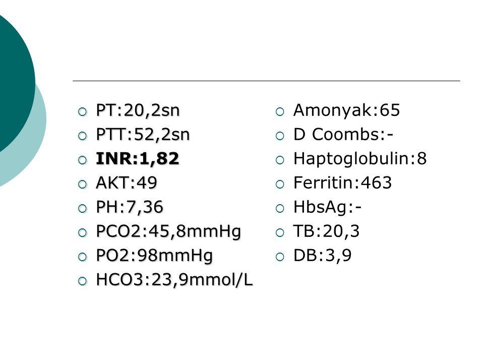 PT:20,2sn PTT:52,2sn. INR:1,82. AKT:49. PH:7,36. PCO2:45,8mmHg. PO2:98mmHg. HCO3:23,9mmol/L. Amonyak:65.