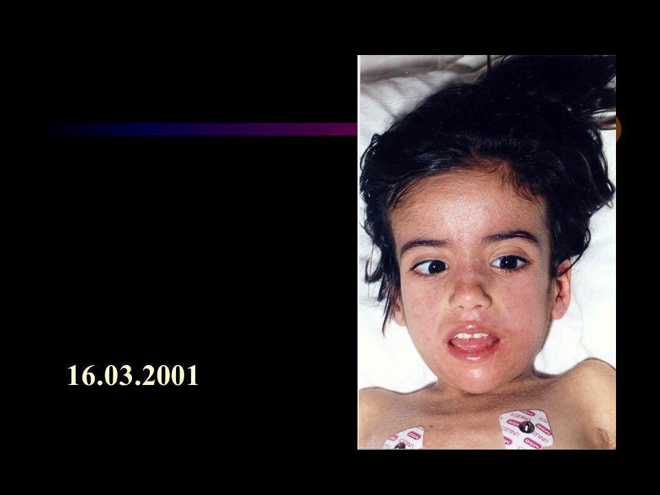16.03.2001