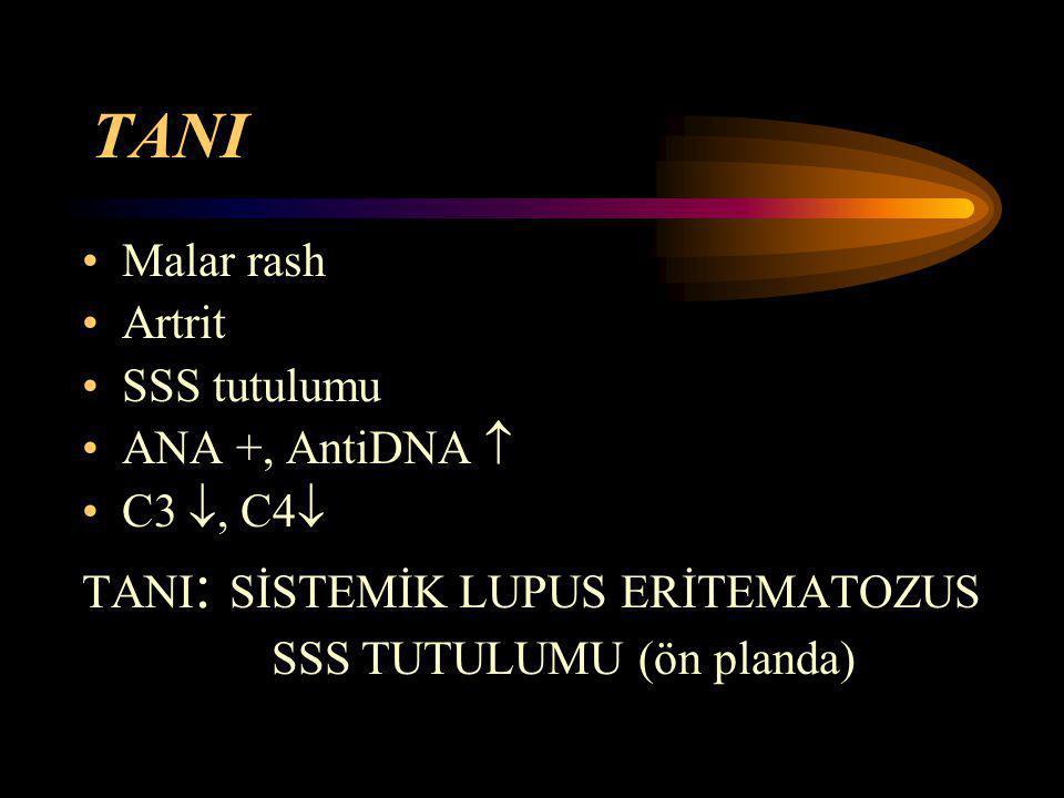 TANI Malar rash Artrit SSS tutulumu ANA +, AntiDNA  C3 , C4