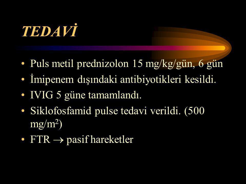 TEDAVİ Puls metil prednizolon 15 mg/kg/gün, 6 gün