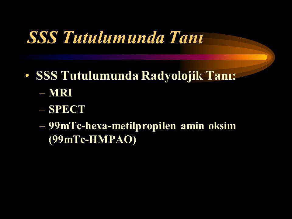 SSS Tutulumunda Tanı SSS Tutulumunda Radyolojik Tanı: MRI SPECT